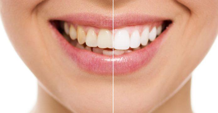sbiancamento dentale milano