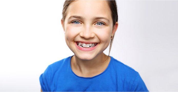 ortodonzia bambini milano