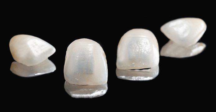 faccette dentali dentista milano